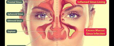 инфекция на синусите