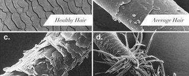 състояние на косъма