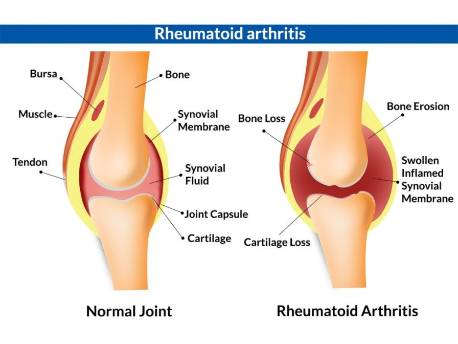 Храни противопоказни за артрит